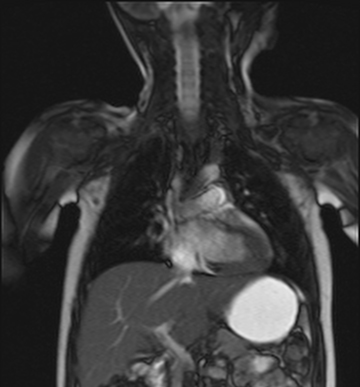 This MRI of a research participant was taken six months after receiving gene therapy to the diaphragm. Researchers measured the descent of the diaphragm during breathing as a way to evaluate muscle function and changes in breathing.